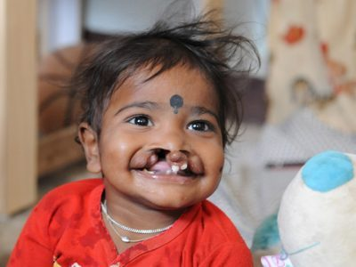 Cleft patient - preop
