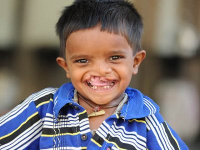 Cleft patient preop